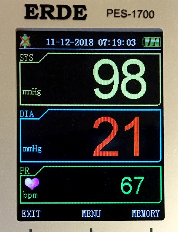 ペット用血圧計エルデで人間の指を測ってみた