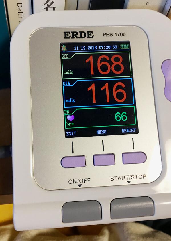 ペット用血圧計エルデで人間の手首を測ってみた
